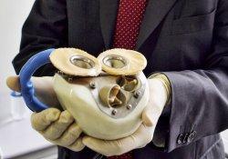 Франция: первое в мире искусственное сердце работает «на отлично»