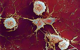 Обнаружена способность витамина D блокировать перемещение клеток иммунной системы к очагам рассеянного склероза