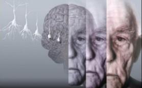 Ученые раскрыли секрет наследуемой болезни Альцгеймера