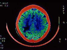 Между болезнью Альцгеймера и анемией существует связь