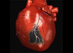Инфаркт убивает по ночам