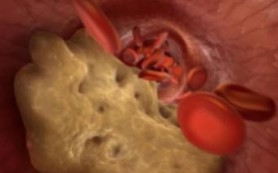 «Хороший» холестерин оказался способен превращаться в «убийцу» сосудов