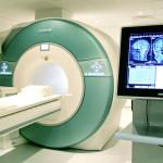 МРТ диагностика стенокардии.