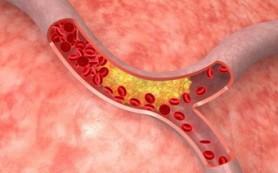 Найден новый подход к лечению атеросклероза