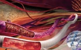 Найдено средство против образования тромбов в области имплантата