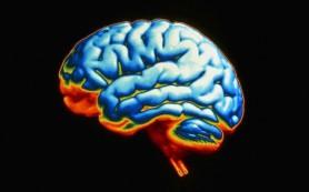 Мозг женщин более устойчив к образованию дефектов