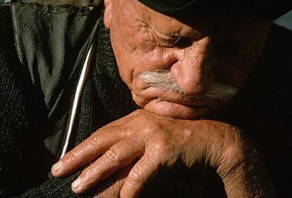 Болезнь Альцгеймера более фатальна, чем принято считать