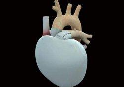 Сбой искусственного сердца – операции приостановлены