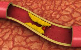 Обнаружен генетический маркер уровня холестерина