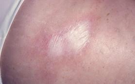 Склеродермия: причины, симптомы, лечение