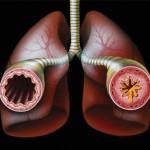 Остановим бронхиальную астму