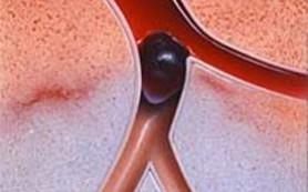 Тромбоз: лечить, нельзя запускать