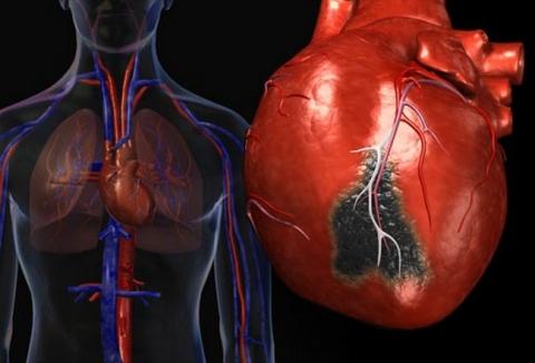 Обнаружены гендерные различия в отдаленных последствиях перенесенного инфаркта миокарда у больных среднего возраста
