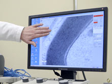 На рынок выходит новое средство от рассеянного склероза