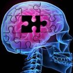 Открыт новый способ восстановления организма после инсульта