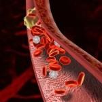 Первый Всемирный день тромбоза пройдет 13 октября в России