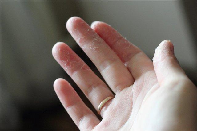 Облазит кожа на пальцах рук