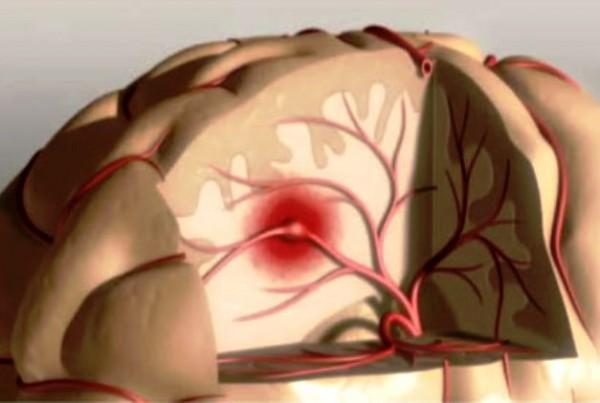 Получены новые доказательства связи криптогенных инсультов с сердечными патологиями