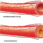 Чем опасен атеросклероз сосудов и каковы его симптомы?