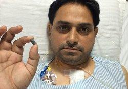 Житель Индии на протяжении 2-х месяцев жил с пулей в сердце
