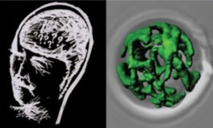 Биохимики открыли новый механизм развития болезни Альцгеймера
