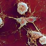 Получены первые результаты КИ нового препарата против рассеянного склероза