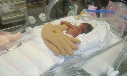 Лечение инсульта у новорожденных: новый научный прорыв