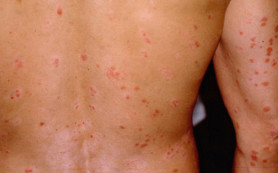 При псориазе увеличивается риск смерти от проблем с сосудами