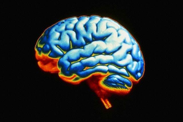 Ученые нашли способ защиты мозга от химических токсинов