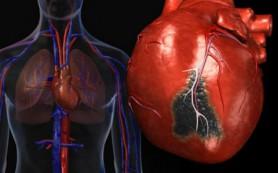 Исследование: инфаркт — последствие вспышек ярости