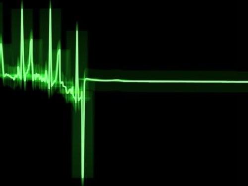 Обнаружены свидетельства сохранения сознания после остановки сердца