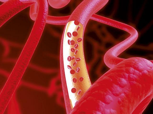 Ученые из крови научились выращивать новые вены