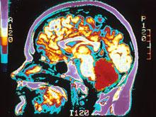 Справиться с болезнью Паркинсона поможет эффект плацебо