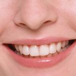 Белоснежная улыбка в домашних условиях