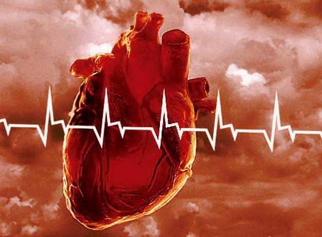 Сердечно-сосудистые  заболевания (ССЗ)