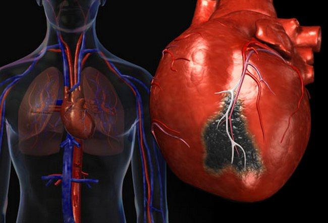 Инфаркт миокарда его причины, профилактика