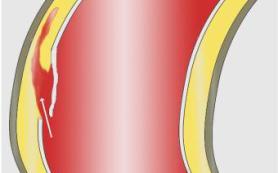 Какие существуют методы для лечения аневризмы аорты