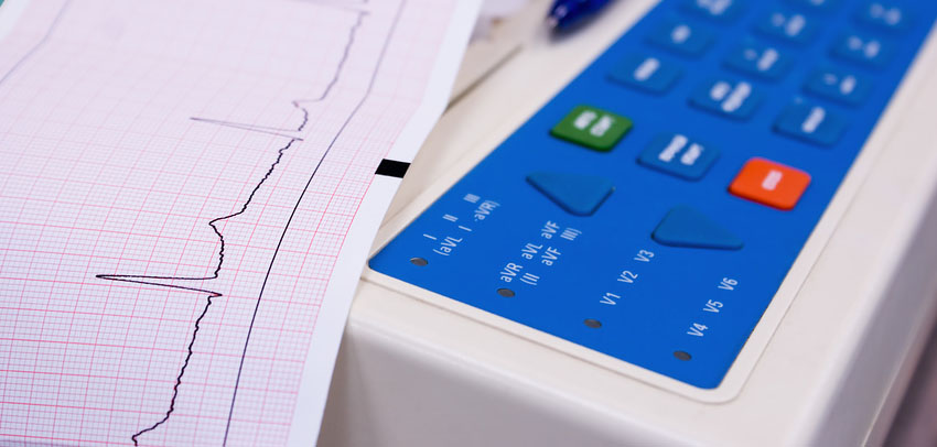 В Краснодаре пациент украл у «скорой» кардиограф