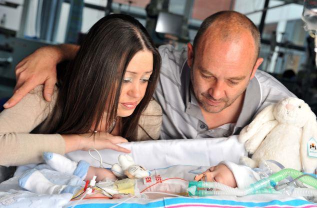 Коартация аорты у новорожденных