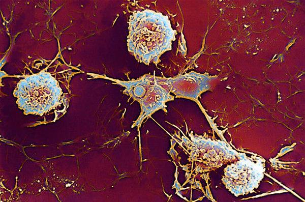 У больных, страдающих рассеянным склерозом, фармакотерапии финголимодом в некоторых случаях может быть связана с развитием лимфопении
