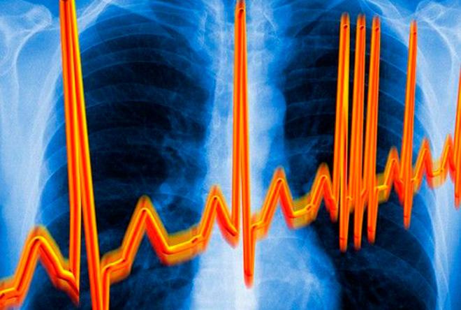 Аритмия. Нарушения сердечной деятельности, связанные с аритмией