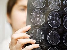 Генетики: вирусы помогли эволюции человеческого мозга