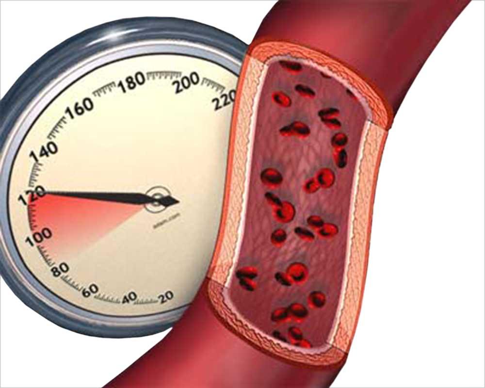 Успешно испытано устройство для снижения артериального давления