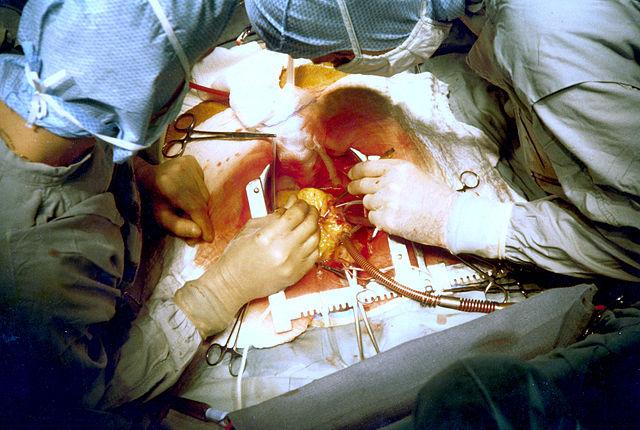 Операция шунтирования: как проводится и в чем опасность