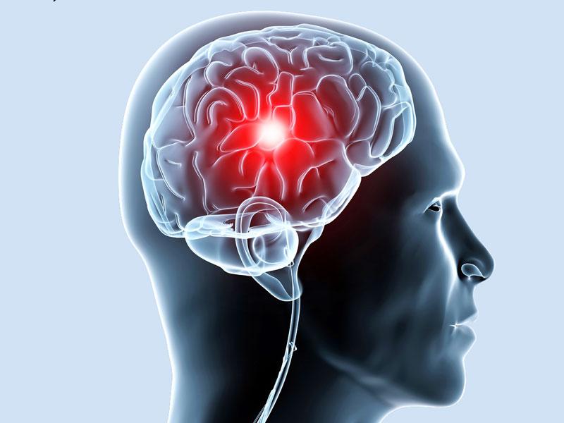 Венозная недостаточность мозгового кровообращения
