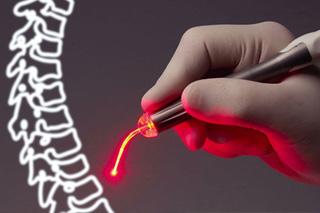 Лечение позвоночника лазером