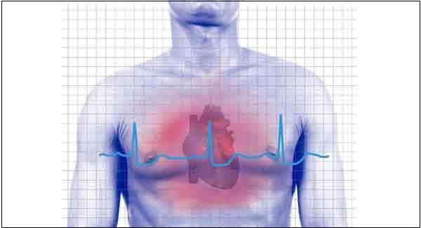 Синдром сердечной недостаточности