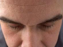 Ученые создали новый тест для диагностики когнитивных нарушений