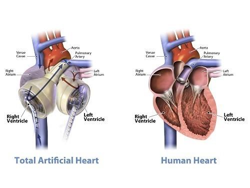 «Ростех» создаст российское искусственное сердце