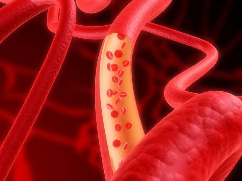 Медики создали клей для кровеносных сосудов